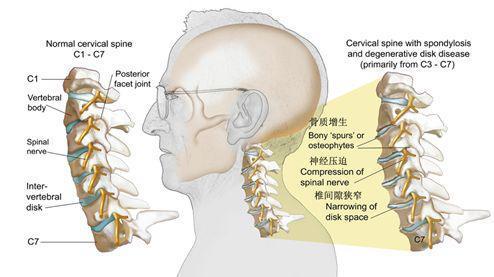 一文读懂颈椎曲度变直(附专业康复方案)